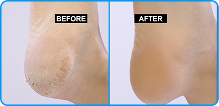 Before and after foot image